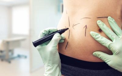 Lipoaspiração e abdominoplastia: entenda a diferença